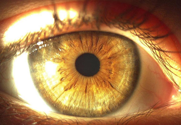 5-iridologia-580x400
